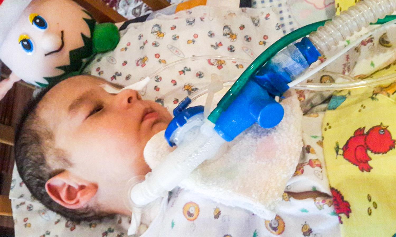 Beatmung & Tracheostoma | rehaKIND e. V. |Internationale Fördergemeinschaft Kinder- und Jugendrehabilitation