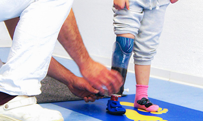 Orthesen & Prothesen | rehaKIND e. V. |Internationale Fördergemeinschaft Kinder- und Jugendrehabilitation